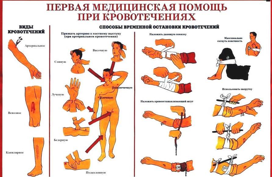 как оказать первую помощь при кровотечении
