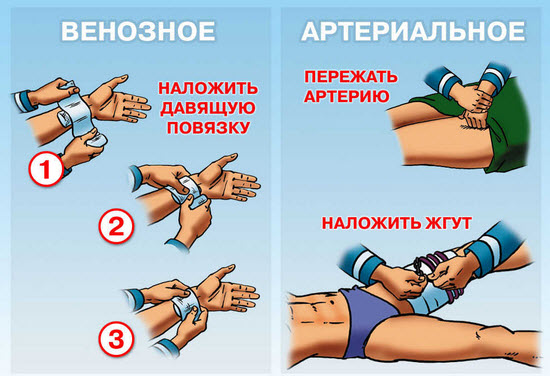 Как наложить жгут и повязку