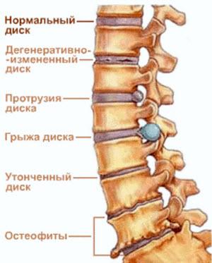 Позвоночник с остеохондрозом