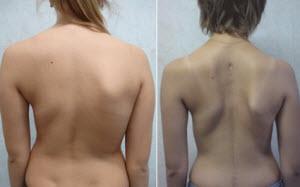 Кривая спина женщины