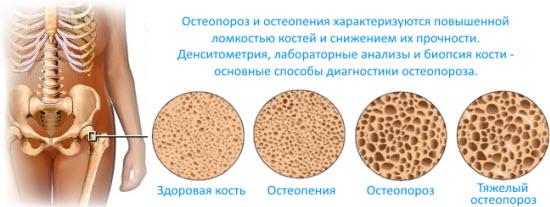 Остеопения