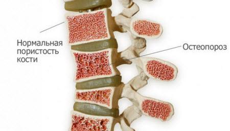 Пористость кости при остеопорозе