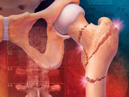 Тазобедренная кость при остеопорозе