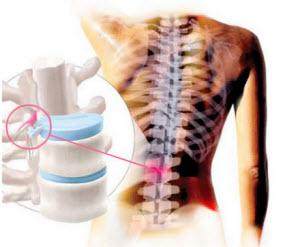 Защимление спинного мозга