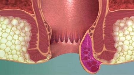 воспаление при парапроктите