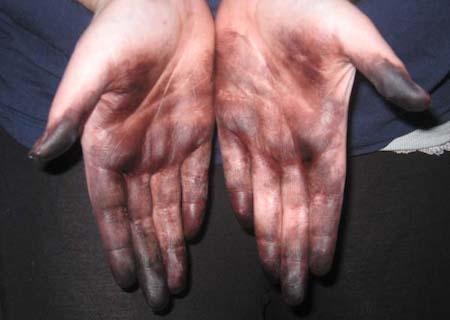 пятна краски на коже