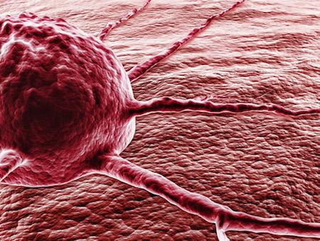 онкологические опухоли