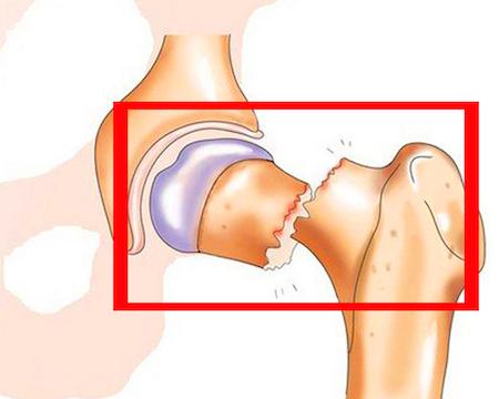 переломы при остеопорозе