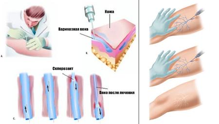 введение склерозанта