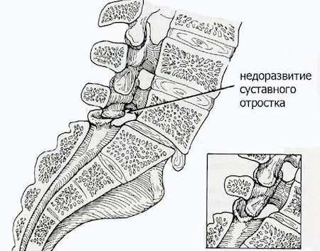 спондилолиз